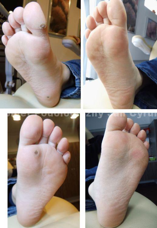 brodawki-na-stopach-przed-i-po