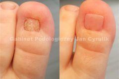 rekonstrukcja-paznokcia-stopy