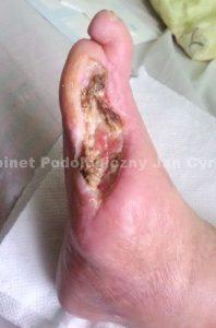Otwarta rana, zgorzel na stopie