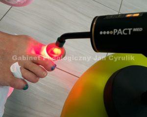 fotodynamiczne przenoszenie światła LED