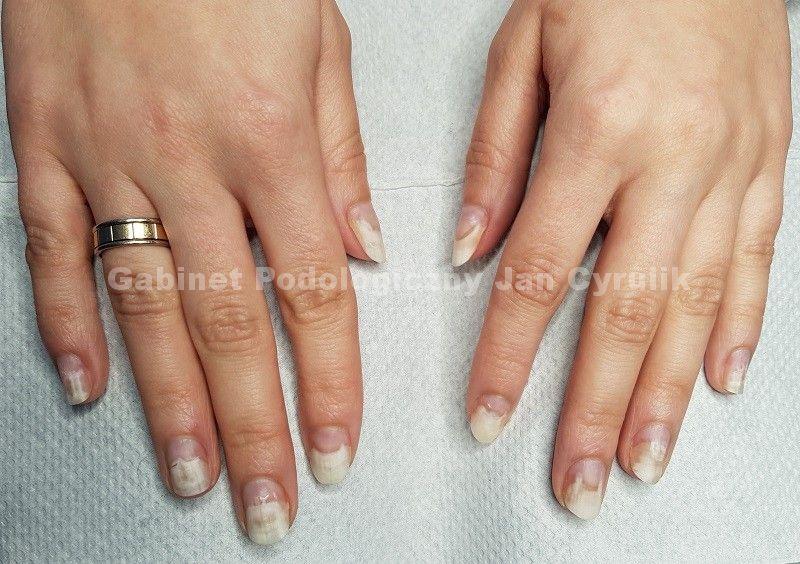Duża powierzchnia paznokci z onycholizą