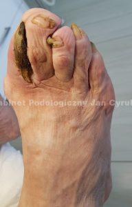 Szponowate paznokcie