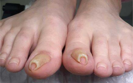 Problem z paznokciami wkręcającymi